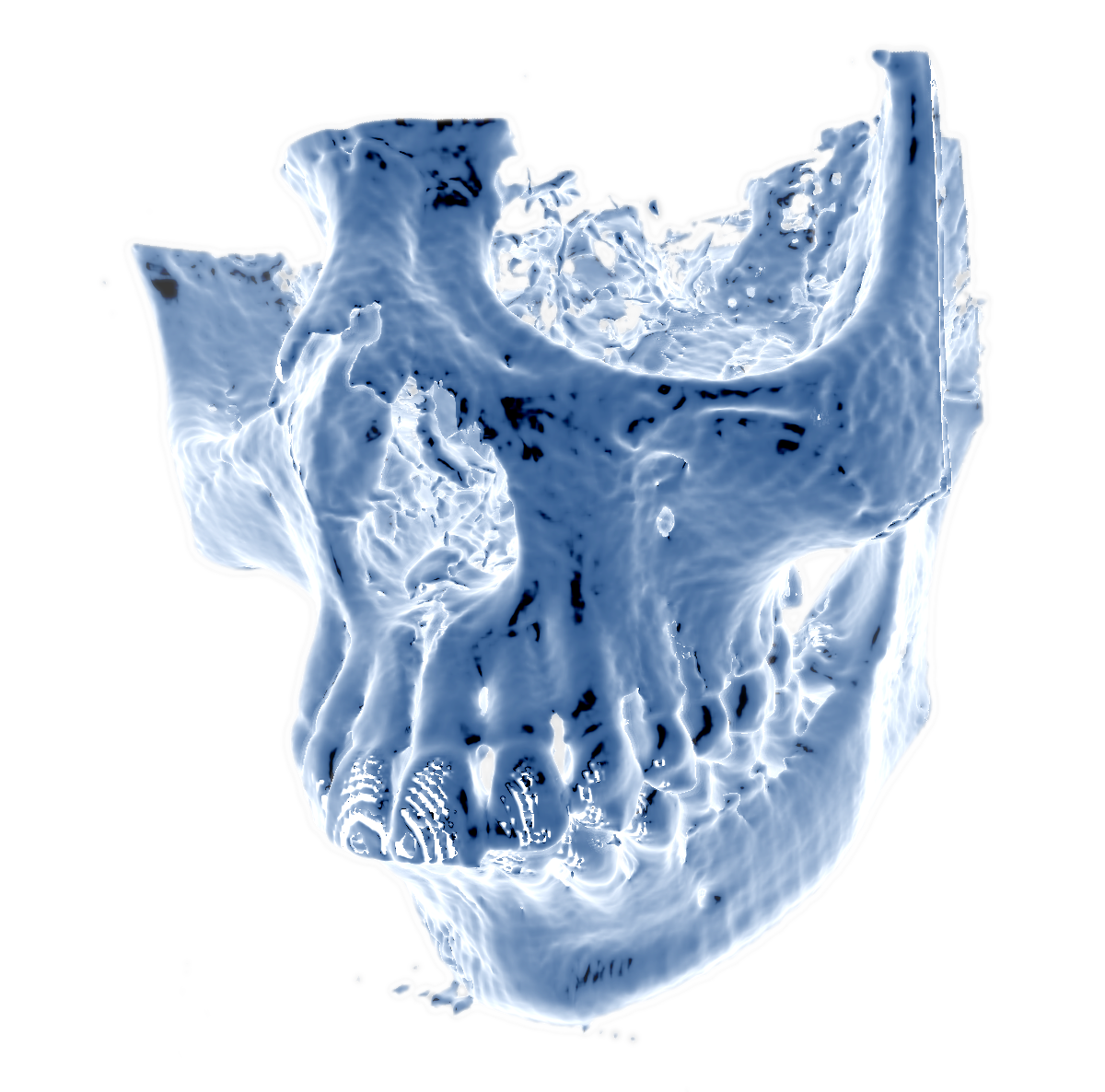 Volumetric visualization of CT scan of human scull.